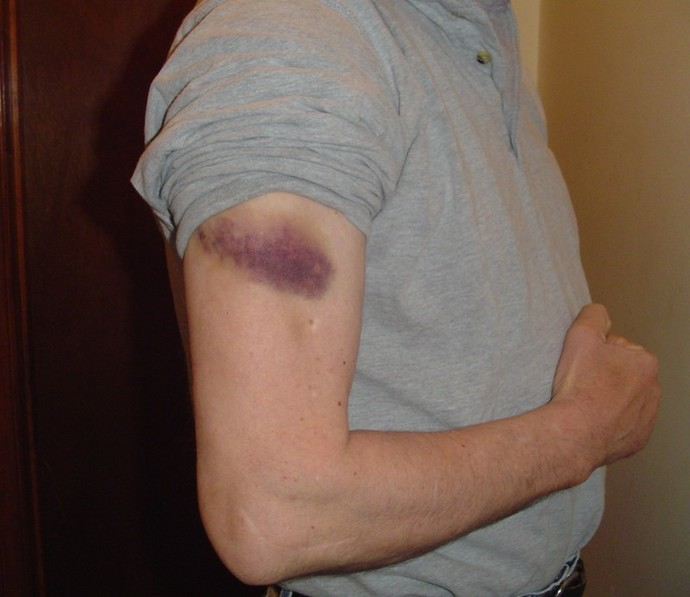 bruise arm man injury