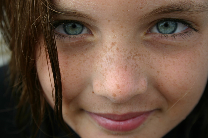 Freckle Face (Image by middlewick via morgueFile)
