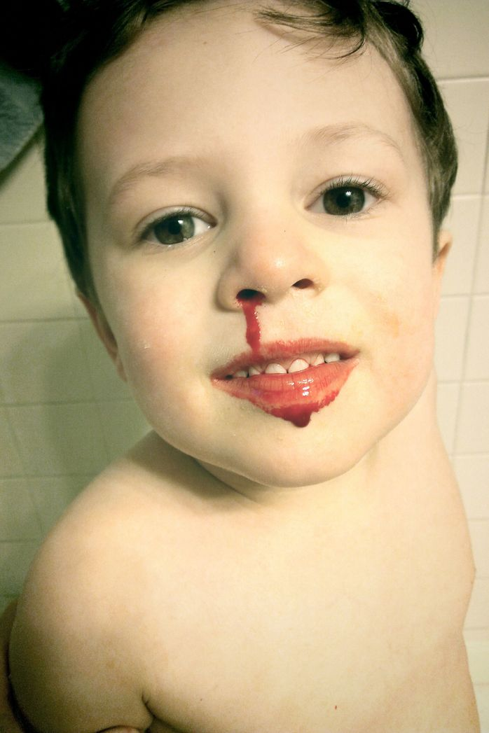 nose bleed nosebleed child smile blood injury first aid