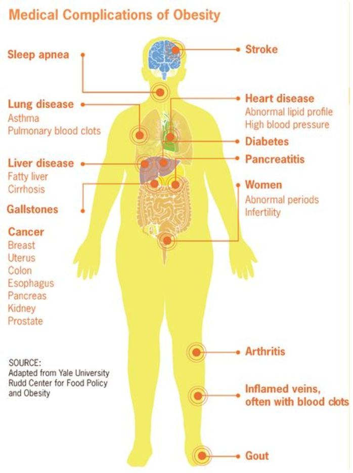 obesity man medical disability complications