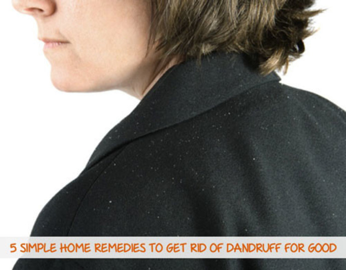 woman with dandruff