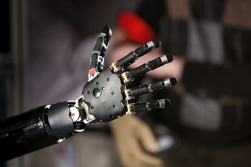 would,you,accept,bionic,body,parts,to,prolong,your,life  - Would you accept bionic body parts to prolong your life?