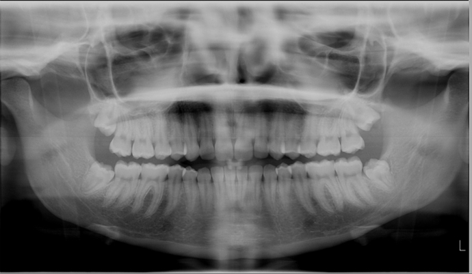 xray, teeth, jaw, wisdom teeth, mouth
