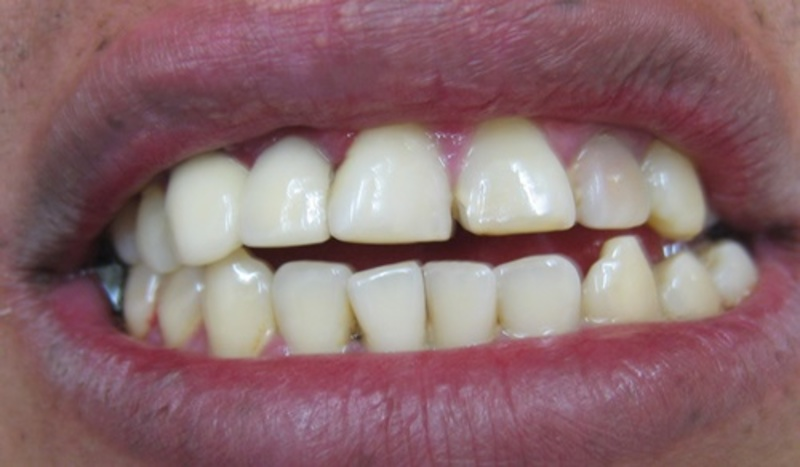 hav,eyou,ever,suffered,from,sensitive,teeth  - Have you ever suffered from sensitive teeth?